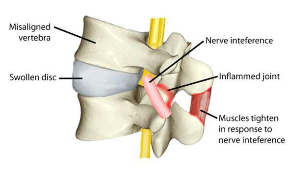 Раздражение нерва, воспаление, напряжение мышц