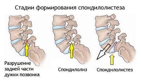 Эффективное лечение артрита суставов