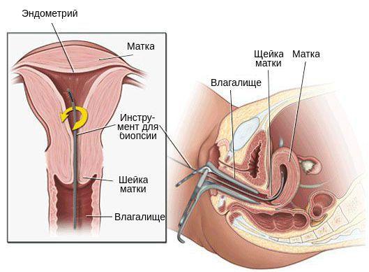 Биопсия внутреннего слоя матки