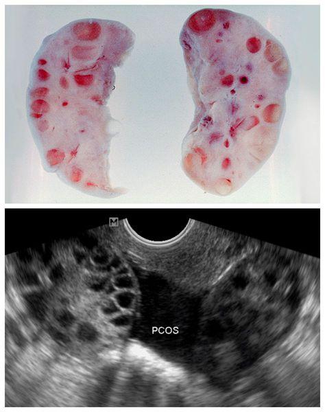 Фолликулярные кисты в яичниках