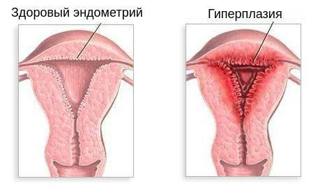 Гиперплазия внутреннего слоя матки