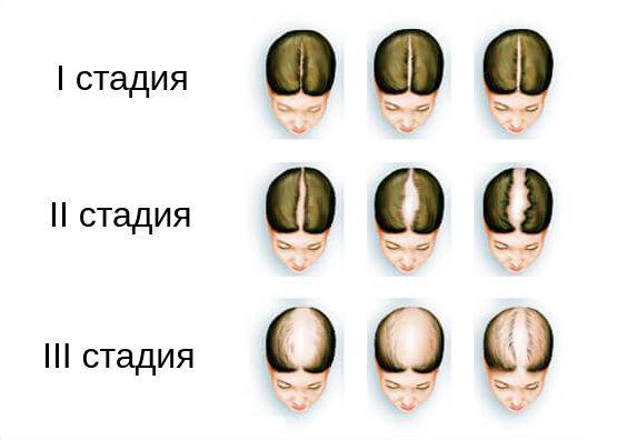 Визуальная шкала Людвига для оценки выраженности алопеции