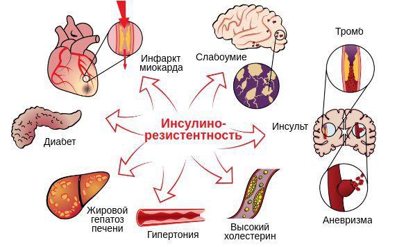 Влияние инсулинорезистентности на другие органы и системы