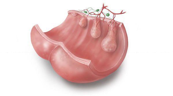 Стадии развития опухоли в кишечнике