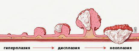 Стадии развития опухоли