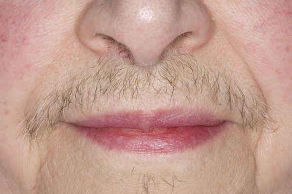 Усиленный рост волос над губой
