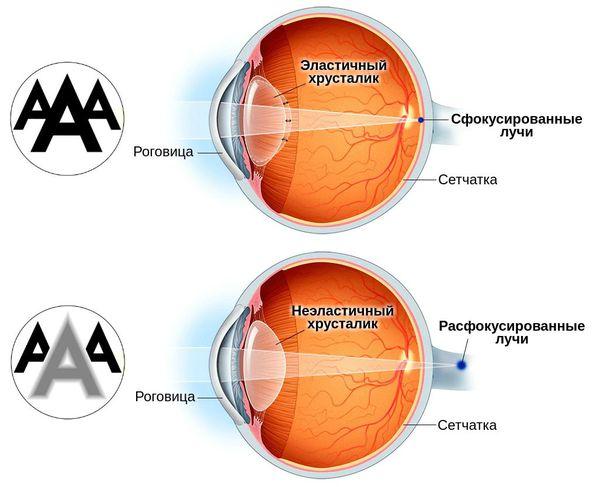 Изменение точки фокуса в случае пресбиопии