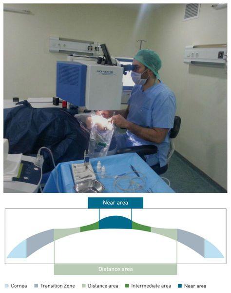 Лазерная коррекция зрения по технологии PresbyMAX