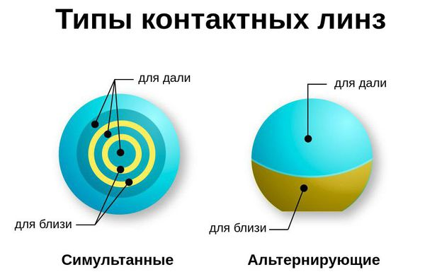 Типы мультифокальных контактных линз