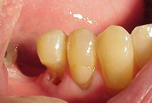Глубокий кариес, который может привести к перелому зуба