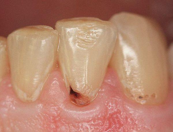 Кариес в области шейки зуба