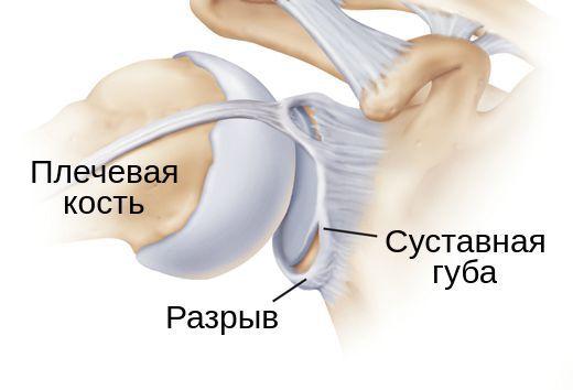 Отрыв суставной губы от плечевой кости
