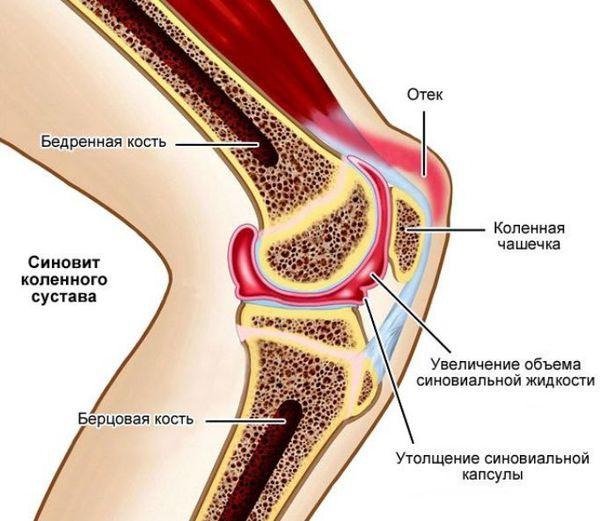 Воспаление и отёк коленного сустава после вправления вывиха
