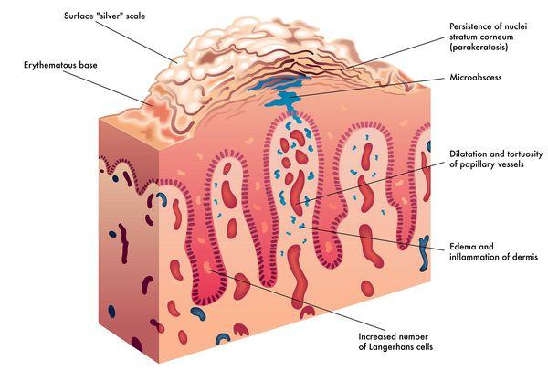Поперечное сечение кожи при псориазе