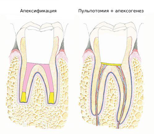 Апексификация и апексогенез