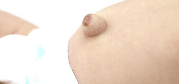 Пигментация кожи пупочной грыжи