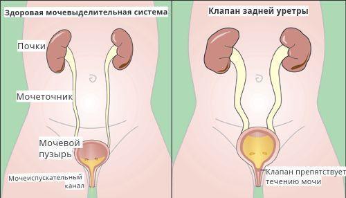 Врождённый клапан задней уретры