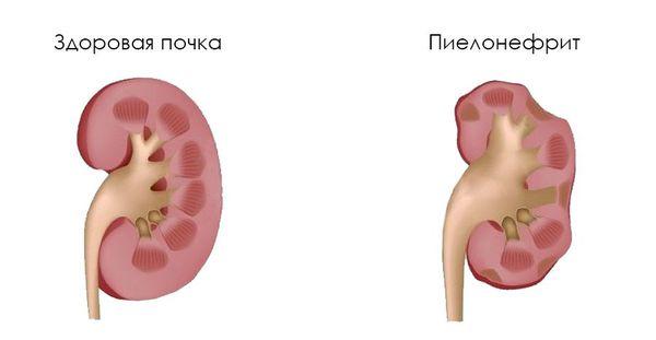 Здоровая почки и пиелонефрит