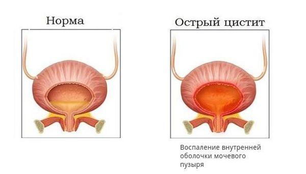 Здоровый мочевой пузырь и острый цистит