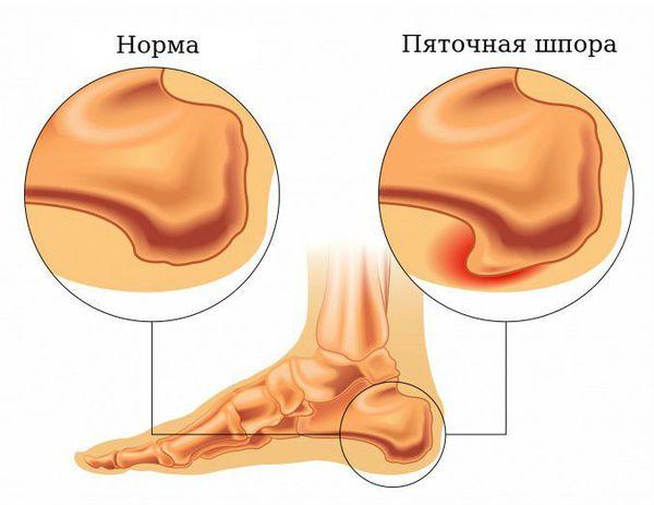 Нормальная пяточная кость и пяточная шпора