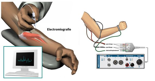 Стимуляционная электромиография
