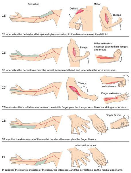Лечебная физкультура при радикулите