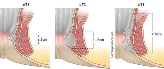 Стадии рака анального канал (размеры опухоли)