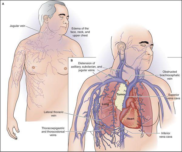 Cиндром сдавления верхней полой вены