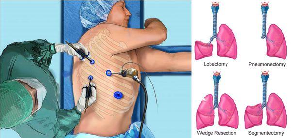 Хирургический метод лечения рака лёгкого