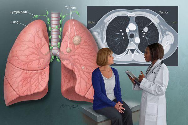 Опухоль лёгких