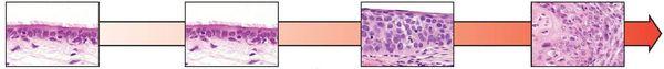 Перерождение эпителия в бронхогенную карциному