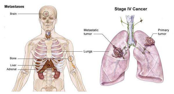 Выход метастазов опухоли за пределы грудной клетки