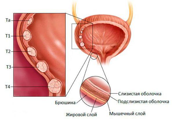 Стадирование рака мочевого пузыря