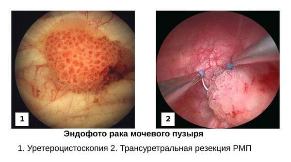 Эндофото рака мочевого пузыря