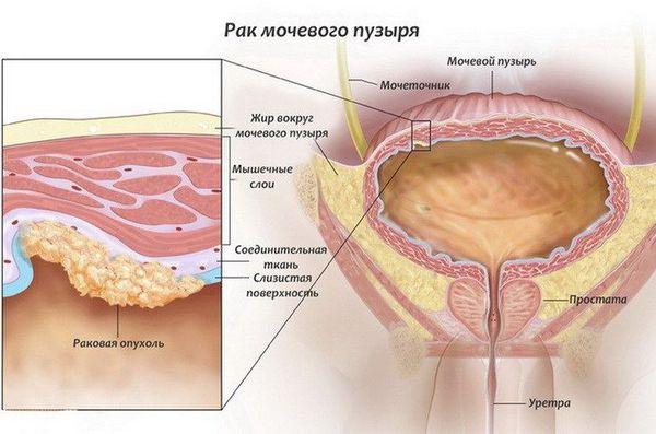 Злокачественная опухоль в мочевом пузыре