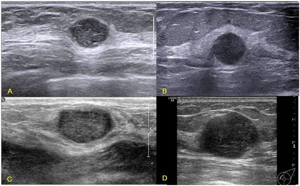 УЗ-картина рака груди