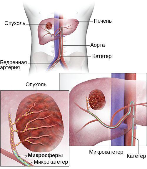 Радиотерапия рака печени