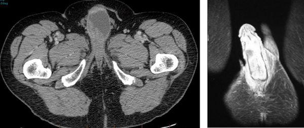 Рак полового члена на снимках КТ и МРТ