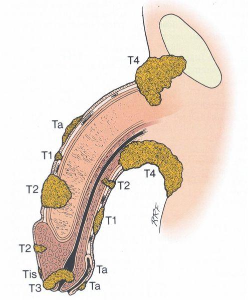 Стадии развития рака полового члена