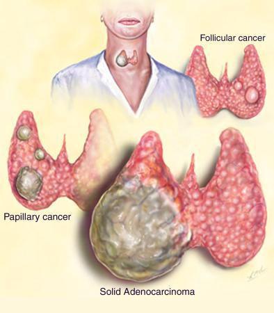 Типы рака щитовидной железы