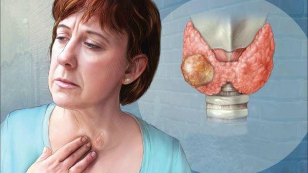 Злокачественное образование щитовидной железы