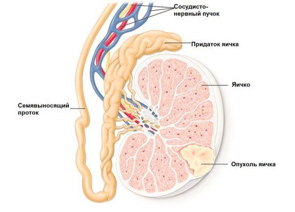 Расположение опухоли при раке яичка