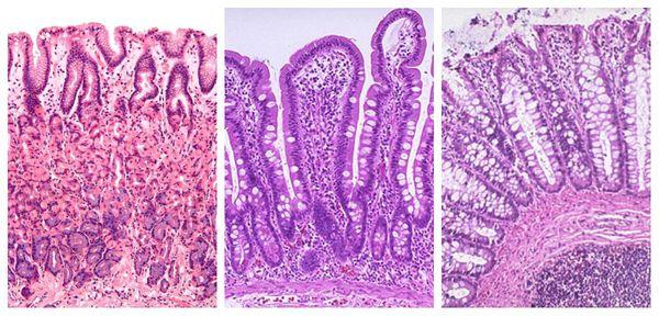 Слизистая желудка, тонкой и толстой кишки (слева направо)