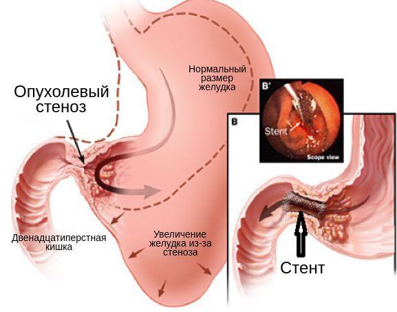 Стентирование опухолевого стеноза