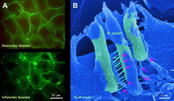 Здоровая и инфицированная ткань желудка (слева). H. pylori в ткани желудка (справа). Стрелочками указаны токсины, которые могут являться причиной рака
