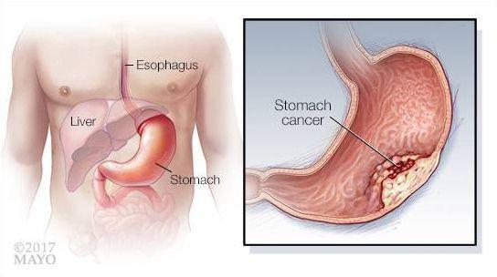 Злокачественная опухоль желудка
