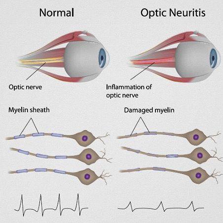 Изменение оболочки зрительного нерва