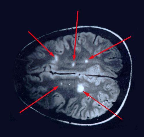 Очаговые изменения в белом веществе мозга