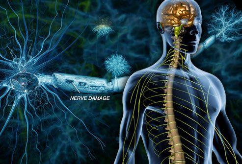 Разрушение миелиновой оболочки нервных волокон при рассеянном склерозе