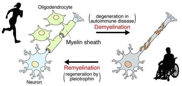Ремиелинизация нервных волокон